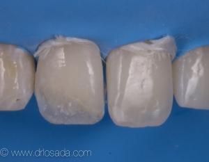 Aplicación masa dentina